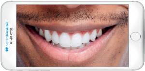 distriktstandvården tandläkare stockholm