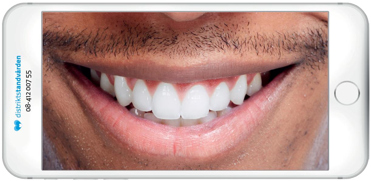 Tandtråd eller inte tandtråd?