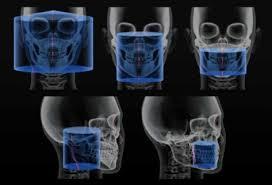 CBCT-röntgen